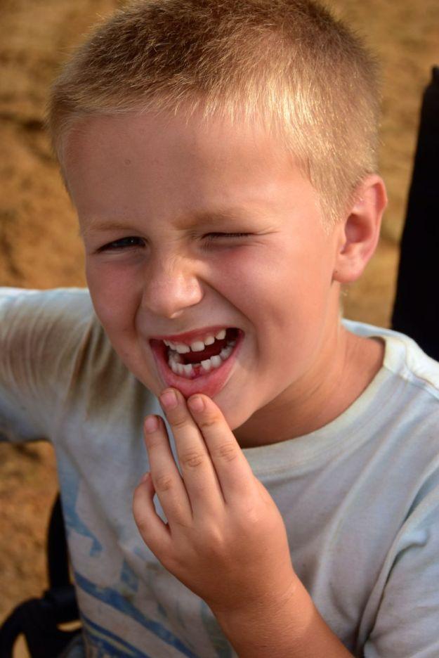 Harald tappade sin första tand